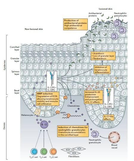 Figura 3.  Ruolo del sistema IL-22-IL22R1 nella psoriasi.  Nella cute non lesa e lesa di pazienti con psoriasi, i cheratinociti sono le principali cellule bersaglio dell'interleuchina-22 (IL-22).  Influenzando la loro biologia, l'IL-22 induce cinque caratteristiche delle lesioni psoriatiche.  Primo, inibisce la differenziazione e la cornificazione dei cheratinociti.  Ciò porta ad ispessimemento epidermico (acantosi), perdita dello strato epidermico granulare e di residui di nuclei cellulari nello strato di epidermide cornificata (paracheratosi).  Secondo, l'IL-22 induce la produzione di proteine antibatteriche di legame.  Questi antibiotici naturali prevengono le infezioni cutanee delle lesioni psoriatiche, che sono caratterizzate da una funzione di barriera altamente disturbata.  Terzo, l'IL-22 induce la produzione di matrix metalloproteinase 1 (MMP1) ed MMP3 nei cheratinociti.  Gli enzimi che degradano la matrice extracellulare (ECM) facilitano l'infiltrazione delle cellule immuni e la ristrutturazione dell'epidermide.  Quarto, l'IL-22 induce la produzione da parte dei cheratinociti di chemochine che attraggono i granulociti neutrofili, e contribuisce quindi all'accumulo di queste cellule nello strato corneo più superficiale dell'epidermide (chiamate ascessi di Munro).  Quinto, l'IL-22 utilizza meccanismi che aumentano o prolungano la propria azione.  Questi includono l'induzione di signal transducer and activator of transcription 3 (STAT3; non mostrato nella figura) e di IL-20.  Come l'IL-22, l'IL-20 (così come anche l'IL-24) usa un complesso recettoriale che contiene la subunità 1 del recettore per IL-22 (IL-22R1) e media effetti simil IL-22 nei cheratinociti.  Gli effetti dell'IL-22 possono essere rafforzati dal tumor necrosis factor (TNF).  Inoltre, l'IL-17 agisce sinergicamente con l'IL-22 per innalzare la produzione di proteine antibatteriche e di chemochine che attraggono i granulociti (non mostrato).  TH, T helper.