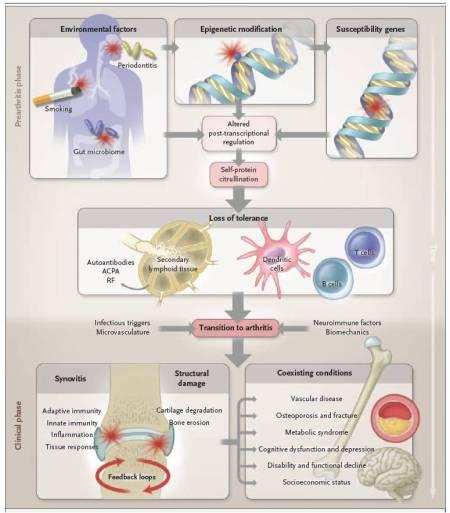 Figura 1.  Progressione multifase nello sviluppo dell'artrite reumatoide. Le interazioni ambiente-gene descritte nel testo promuovono la perdita della tolleranza a proteine-self che contengono un residuo di citrullina, che è generato da modificazione post-traslazionale.  Questa risposta anti-citrullina può essere rilevata nel compartimento delle cellule T e delle cellule B ed inizia probabilmente in tessuti linfoidi secondari o nel midollo osseo.  In successione, la localizzazione della risposta infiammatoria avviene nelle articolazioni grazie a meccanismi scarsamente conosciuti che coinvolgono probabilmente vie micro vascolari, neurologiche, biochimiche o altre vie tessuto specifiche.  La sinovite inizia e si perpetua da un circuito a retroazione positiva ed, a sua volta, promuove disordini sistemici che costituiscono la sindrome dell'artrite reumatoide.  ACPA denota l'anticorpo anti-proteine citrulli nate. E RF il fattore reumatoide.