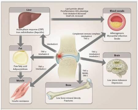 Figura 3.  Meccanismi che contribuiscono alle complicazioni a lungo termine osservate clinicamente in pazienti con artrite reumatoide. I mediatori infiammatori, incluse le citochine, i complessi immuni, e l'alterato metabolismo lipidico, circolano per promuovere molte condizioni coesistenti in pazienti con artrite reumatoide.  CRP denota la proteina C-reattiva, HDL lipoproteine ad alta densità, HPA ipotalamo-ipofisi-surrene, LDL lipoproteine a bassa densità, e SERT trasportatore della serotonina.
